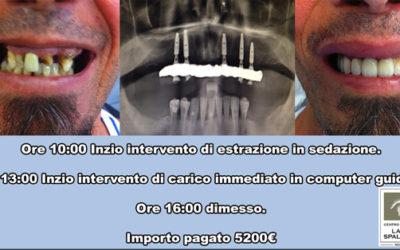 Impianti dentali 24 ore sogno o realtà?
