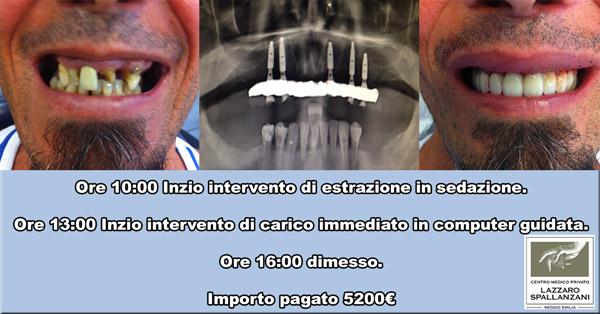 impianti dentali 24 ore Lazzaro Spallanzani Reggio Emilia