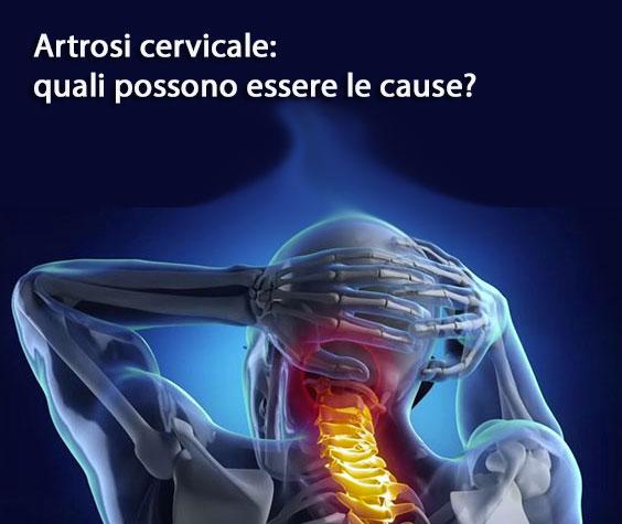Artrosi cervicale, quali possono essere le cause?