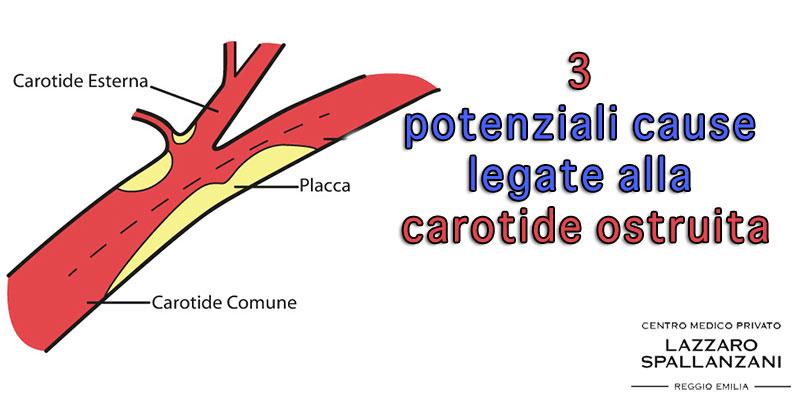 3 potenziali cause legate alla carotide ostruita