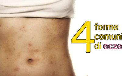 4 forme comuni di eczema