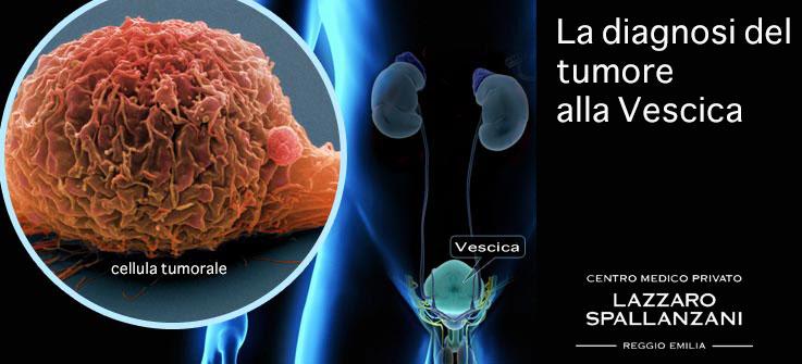 La diagnosi del tumore alla vescica