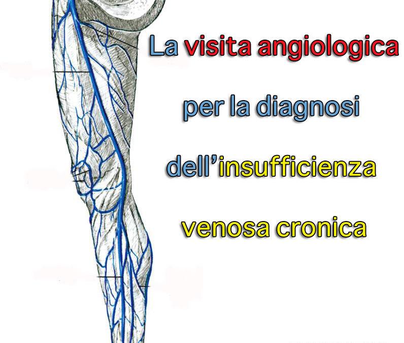 La visita angiologica per la diagnosi dell'insufficienza venosa cronica