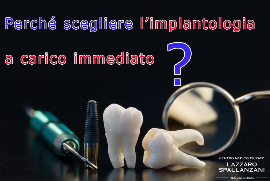 Perché scegliere l'implantologia a carico immediato?