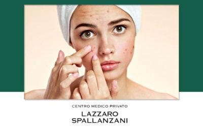 Alcune cause alla base dei problemi di acne