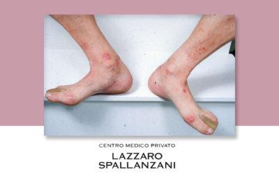 Dermatite: 4 cure per 4 patologie