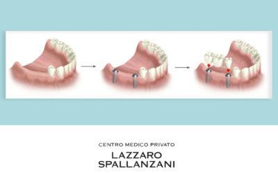 Quali problemi ai denti può risolvere l'implantologia