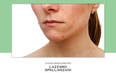 Alcuni metodi per prevenire l'acne cistica