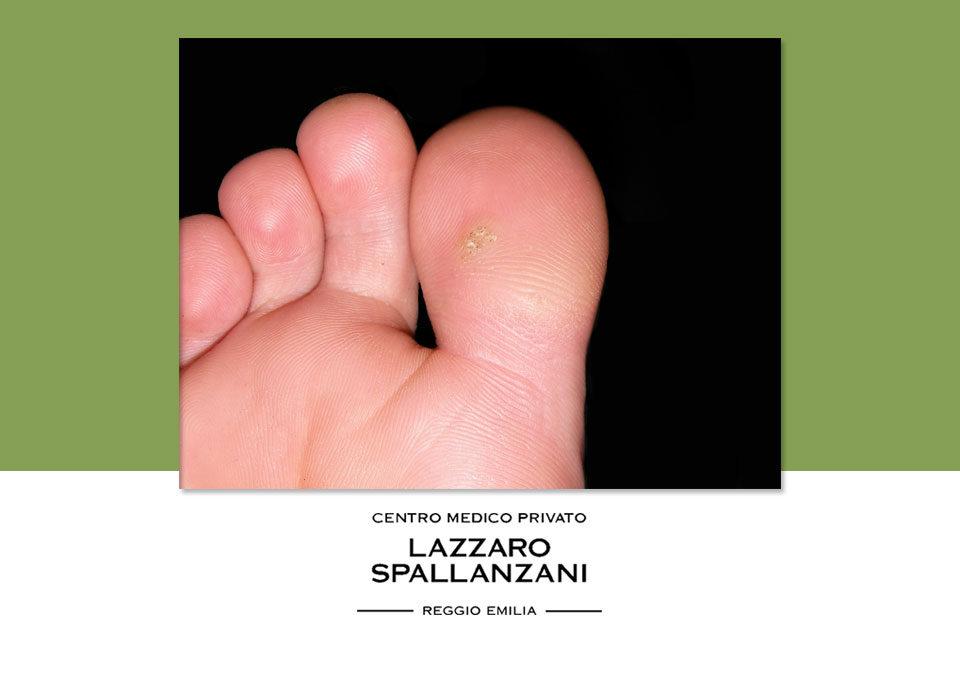 Tre creme efficaci contro la verruca ai piedi