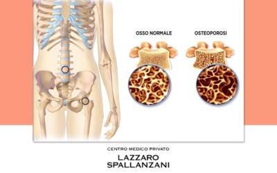 Osteoporosi: l'impatto in Italia e le terapie efficaci per la cura