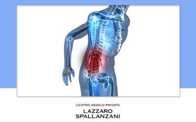 Quali sono i sintomi della sciatica?