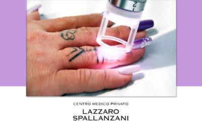 La rimozione laser dei tatuaggi