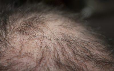 Alopecia: sintomi e cause