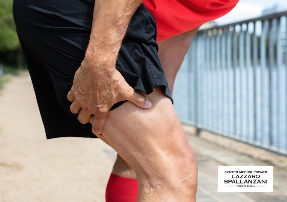 Mal di gambe: 3 motivi che possono causarlo