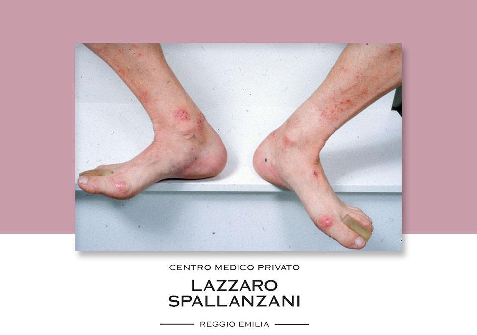 Cura di eczema provviste mediche